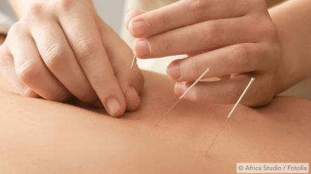Akupunktur und Akupressur – Wie traditionelle chinesische Medizin (TCM) gegen Schnarchen hilft