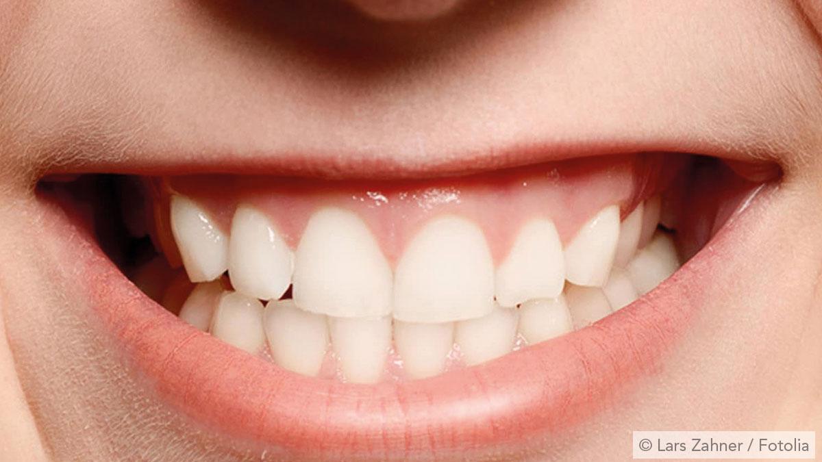 Zähneknirschen nennt man Bruxismus